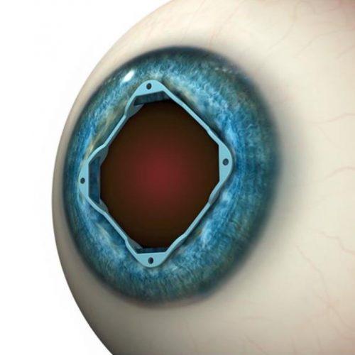 Pupillin laajennus